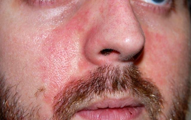 как проявляется аллергия на глазах от косметики